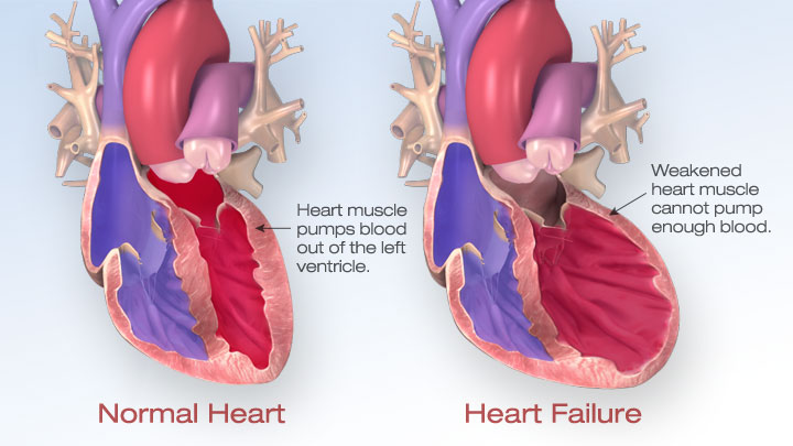 Cardiovascular Institute Offers Heart Failure Clinic ...