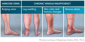 venous_insuff2