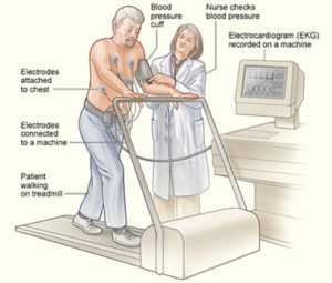 using a treadmill for a stress test